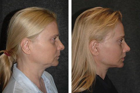 deep plane facelift before after