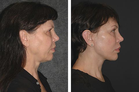 Deep Plane Facelift Before and After Patient Photos