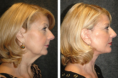 deep plane facelift patient photos