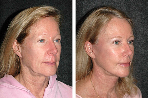 deep plane facelift patient results