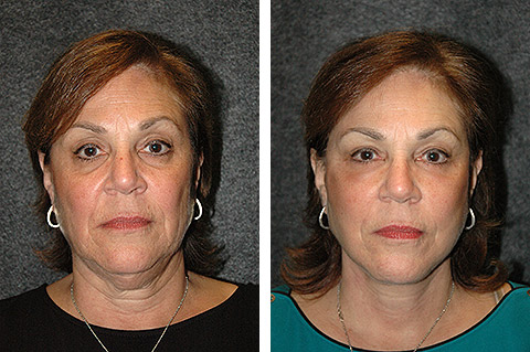 face lift patient before after photos