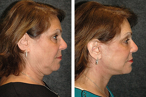 face lift patient photos
