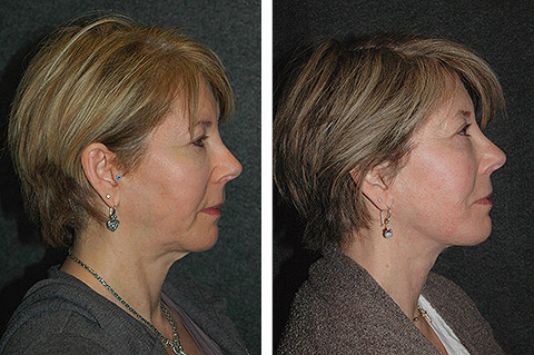 face lift surgery new york