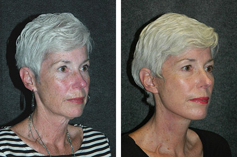 facelift before and after patient pictures