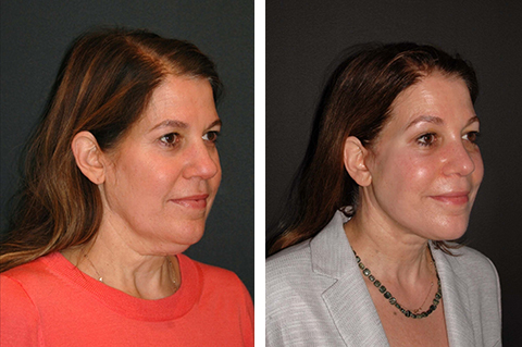 facelift patient before and after photos