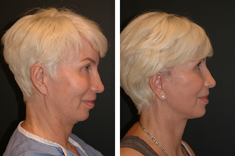 Deep Plane facelift patient before and after photos