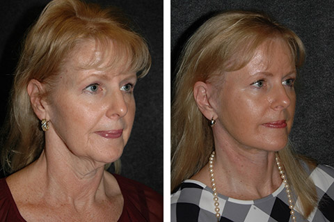 facelift patient photos new york
