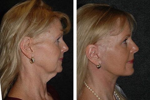 facelift patient photos ny