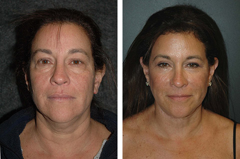 facelift surgery before after photos nyc