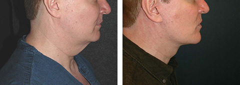 male facelift before and after patient