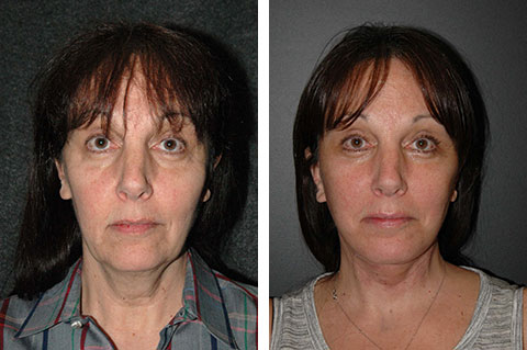 natural facelift results