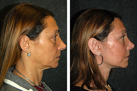 new york face lift patient photos