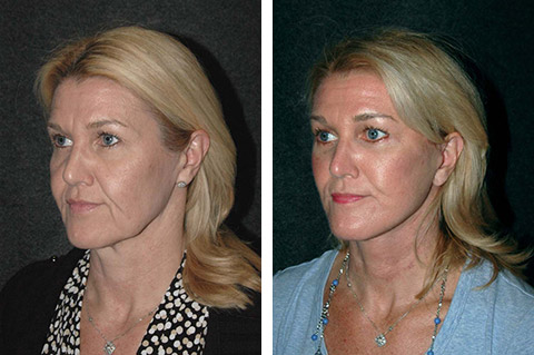 new york facelift patient before and after photos
