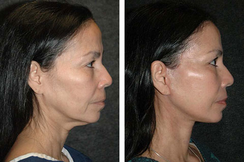 new york facelift patient pictures