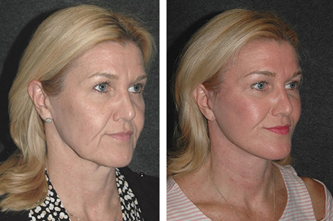 new york facelift surgeon photos