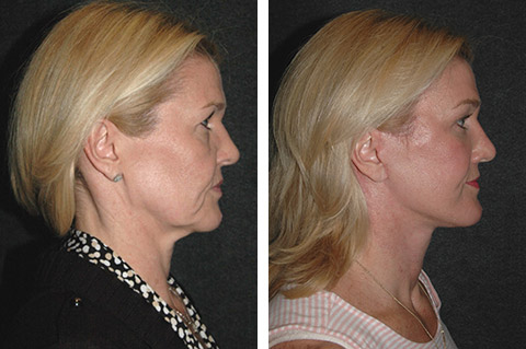 new york facelift surgeon pics