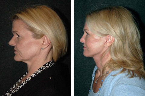 new york top facelift surgeon