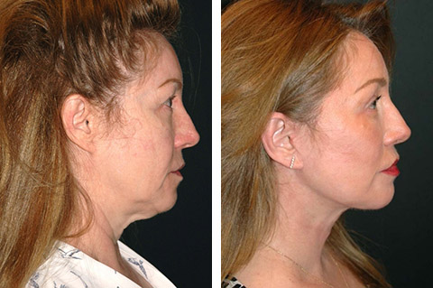 smas facelift before and after