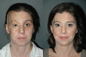 After Burns Image And Before Facial