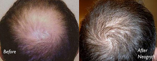 NEOGRAFT HAIR TRANSPLANT - Patient 2