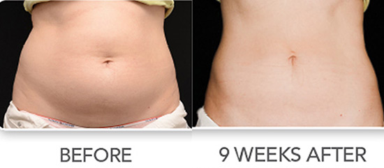 Coolsculpting Freeze the Fat in New York