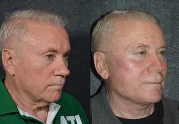 Male Face Lift - Male Neck Lift - Patient 2