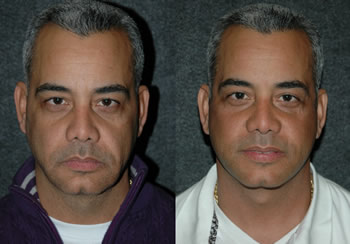 Male Face Lift - Patient 5