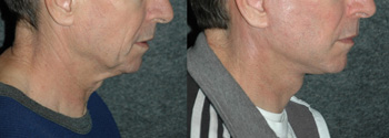 Male Face Lift - Male Neck Lift - Patient 4