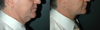 Male Face Lift - Male Neck Lift - Patient 6