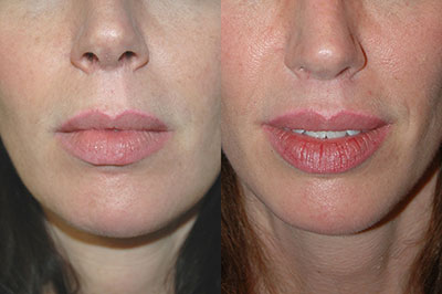 Lip Lift Before and After Cost