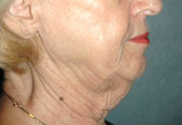 Neck Lift - Patient 2 - Before