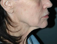 Neck Lift - Patient 1 - Before
