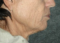 Neck Lift - Patient 3 - Before