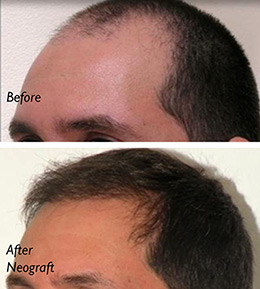 NEOGRAFT HAIR TRANSPLANT - Patient 1