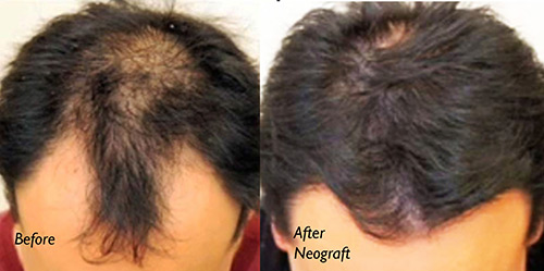 NEOGRAFT HAIR TRANSPLANT - Patient 3
