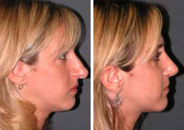 Rhinoplasty Surgeon in Philadelphia
