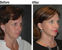 FACELIFT SURGEON | NYC