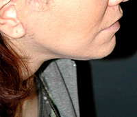 Facelift - Patient 1 - Lateral Right - After