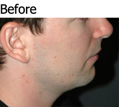JAW IMPLANTS AND CHIN AUGMENTATION - Patient 1 - Before