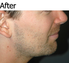 JAW IMPLANTS AND CHIN AUGMENTATION - Patient 1 - After
