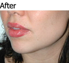 JAW IMPLANTS AND CHIN AUGMENTATION - Patient 2 - After