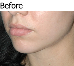 JAW IMPLANTS AND CHIN AUGMENTATION - Patient 2 - Before