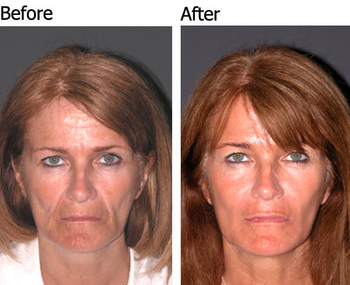 Liquid Face lift - Patient 1
