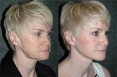 minimal incision face lift patient photos