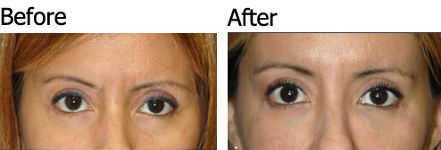 Non-Surgical Eye Lift - Patient 1