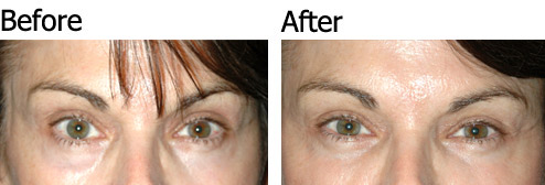 Non-Surgical Eye Lift - Patient 2
