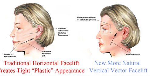 Vertical Facelift Surgery in NY