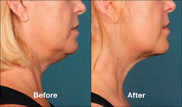 Kybella Injections Double Chin Removal