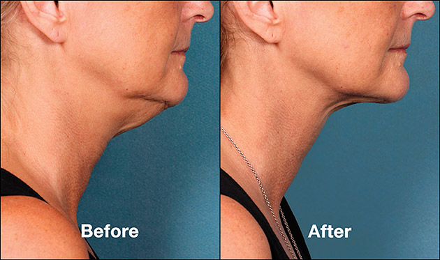 Non Surgical Neck Lift Kybella Injections New York