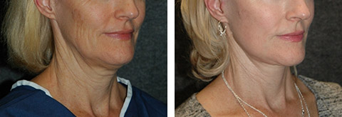 best lower facelift patient photos